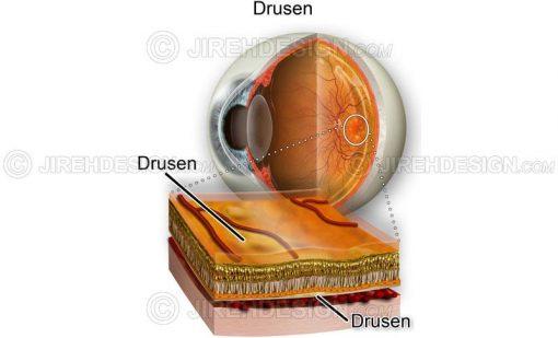 Drusen cross-section #co0102