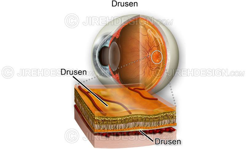 Drusen cross-section #co0102