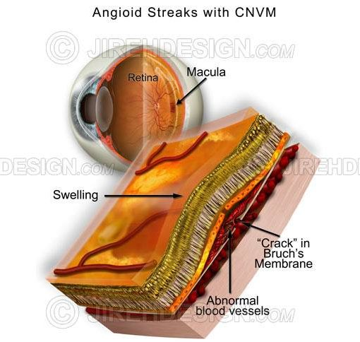 Angioid streaks, Bruch's membrane #co0109