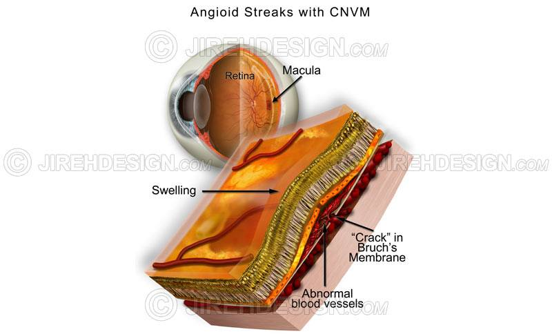Angioid streaks, Bruch's membrane, with underlying leaking choroidal neovascular membrane