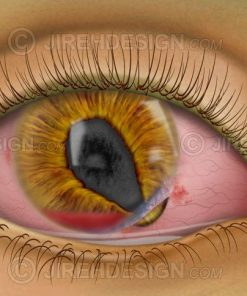 Corneal tear with hyphema