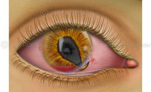 Corneal tear with hyphema #co0110