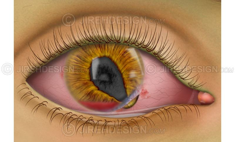 Corneal tear with hyphema #co0110