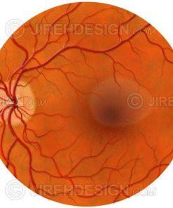 Central serous retinopathy – CSR