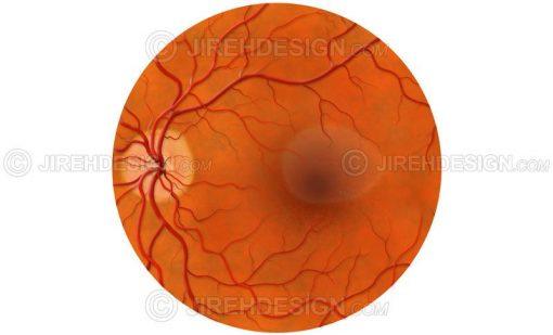 Central serous retinopathy – CSR #co0111