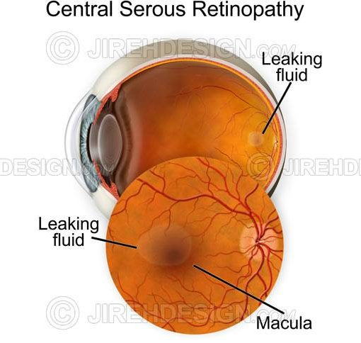Central serous chorioretinopathy – CSCR #CO0112