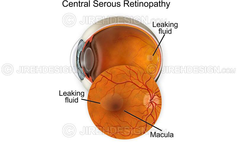 Central serous chorioretinopathy – CSCR