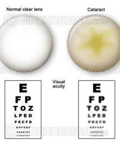 Vision through a cataract