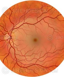 CRAO central retinal artery occlusion