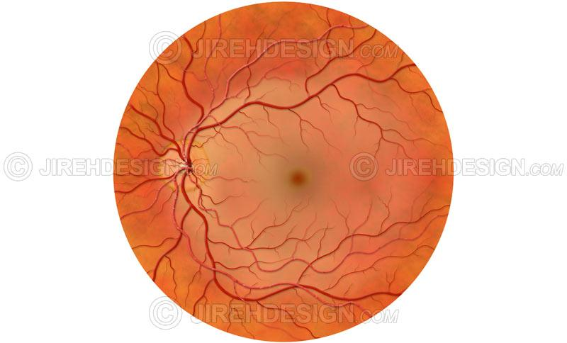Central retinal artery occlusion #CO0115 | Stock eye images