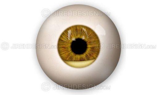 Hypopyon eye infection #co0125