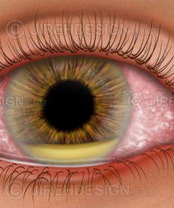 Hypopyon in the eye