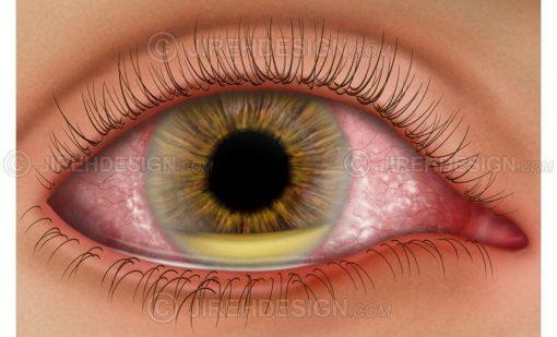 Hypopyon in the eye #co0127