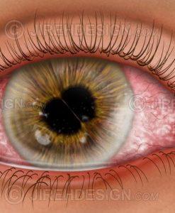 Cornea and iris diseases