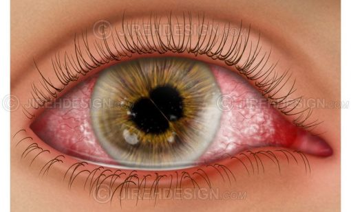 Cornea and iris diseases #co0128