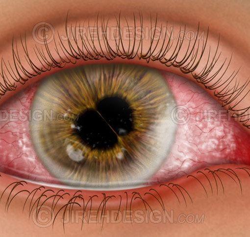 Cornea and iris diseases #co0128