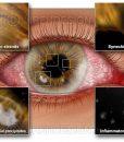 Corneal diseases illustrated