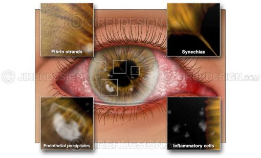Corneal diseases illustrated #co0129