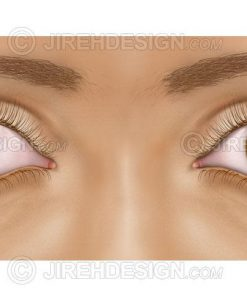 Eye muscle misalignment
