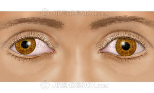 Eye muscle misalignment #co0131