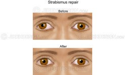 Strabismus eye muscle alignment repair before and after