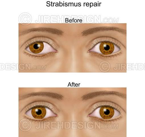 Strabismus eye muscle alignment repair before and after #co0132