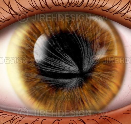 Corneal whorl fabri disease #co0150