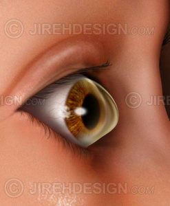 Keratoconus eye disease illustration