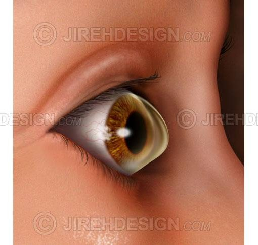 Keratoconus eye disease illustration #co0157
