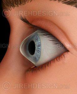 Keratoconus corneal disease