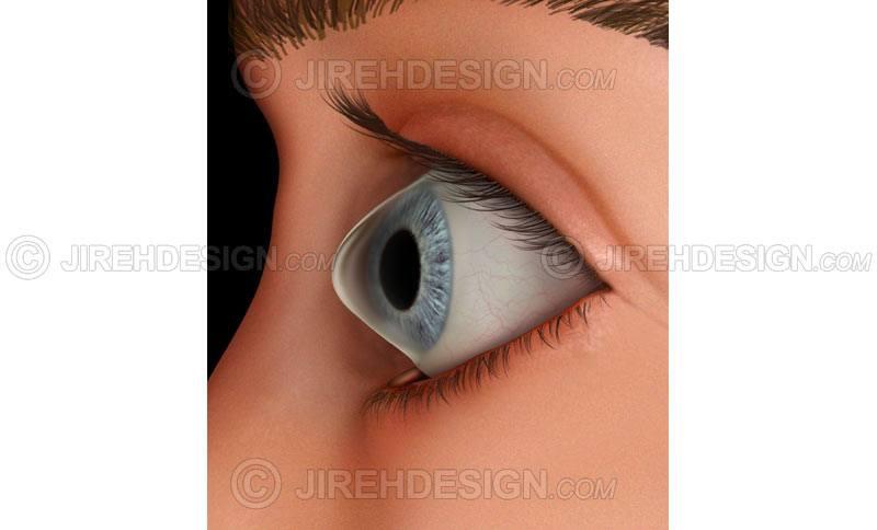 Keratoconus corneal disease #co0158