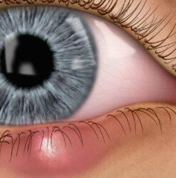 External eye diseases