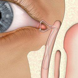 External eye surgery