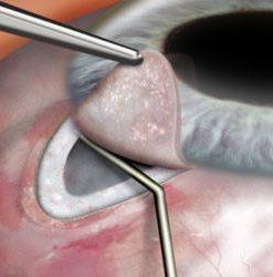 Glaucoma surgery