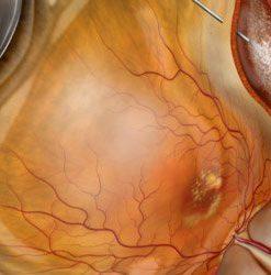 Retina | vitreous surgery