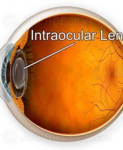 IOL implant