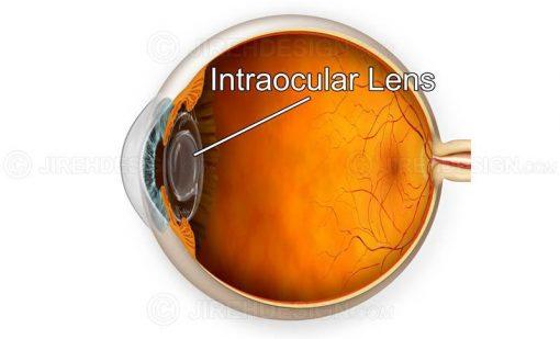 IOL implant #suca0011