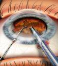 Cataract fragmentation with phaco