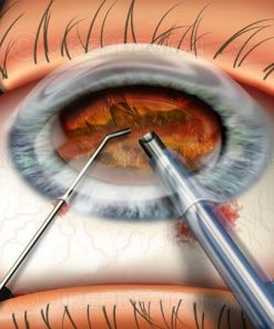 Cataract fragmentation with phaco