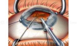Iris retractors for cataract surgery