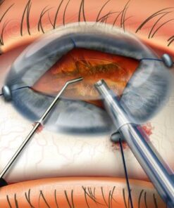 Iris retractors for cataract surgery