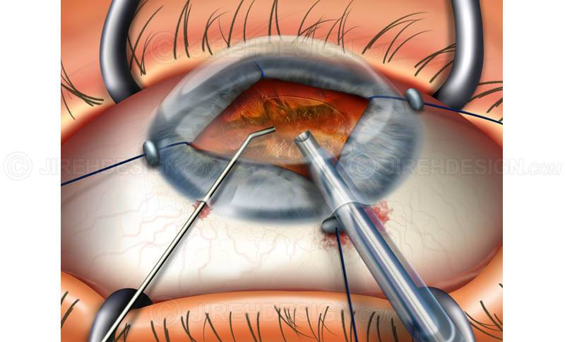 Iris retractors for cataract surgery #suca0015