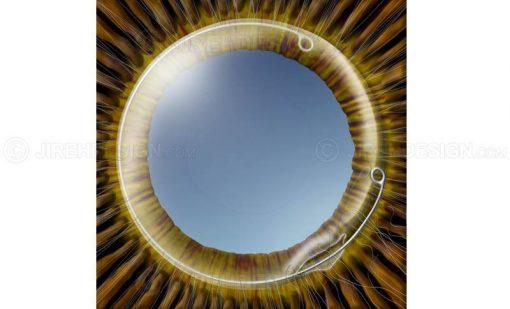 Capsular tension ring rupture #suca0022