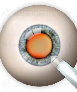 Clear corneal incision
