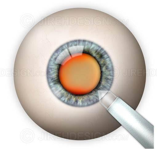 Clear corneal incision #suca0026