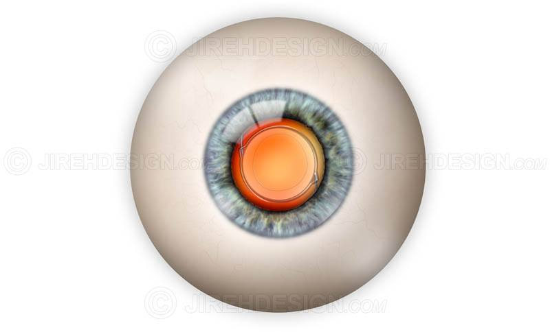 IOL implant in the eye
