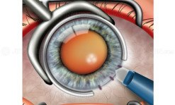 Limbal relaxing incisions for astigmatism