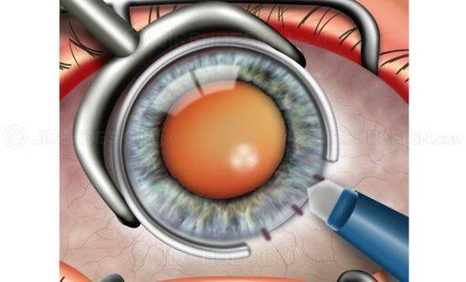 Limbal relaxing incisions for astigmatism #suca0047