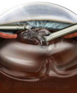 Anterior chamber vitrectomy for broken capsule