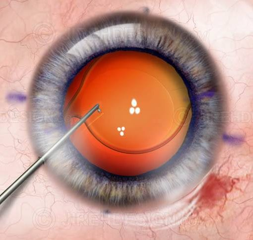 Premium IOL implantation during cataract surgery #suca0060